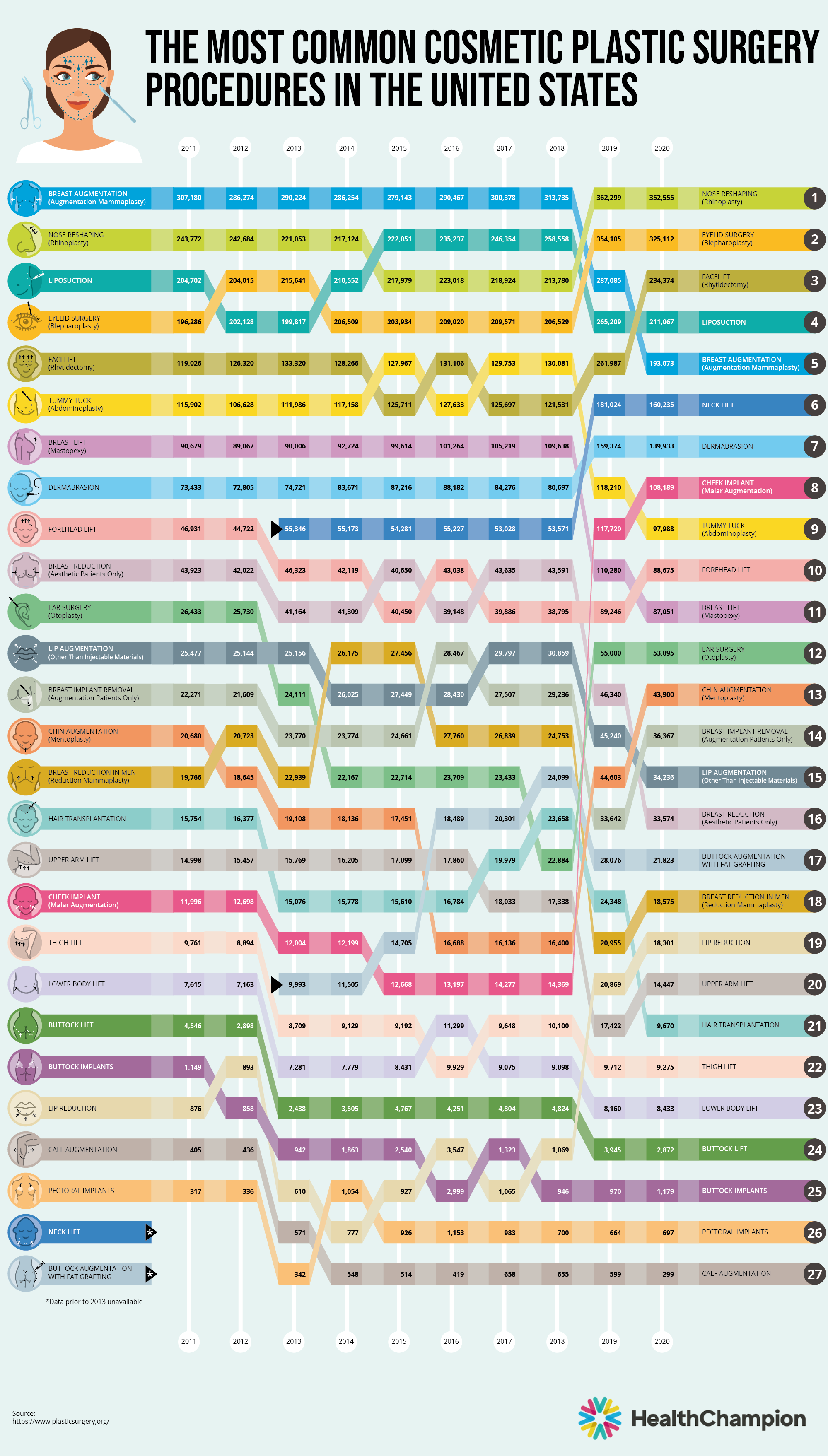 Most Common U.S. Cosmetic Surgery Procedure infographic - HealthChampion